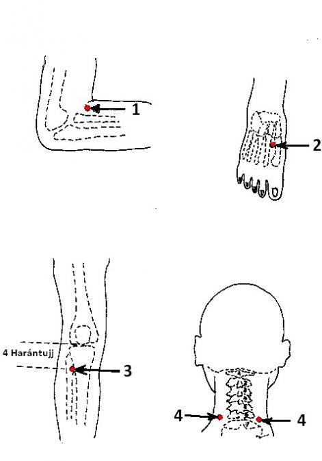 akupunktúrás pontok magas vérnyomás magas vérnyomás és a hagyományos orvoslás