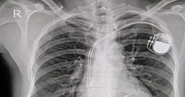 magas vérnyomás és pacemaker magas vérnyomás 2 fokos válságpálya
