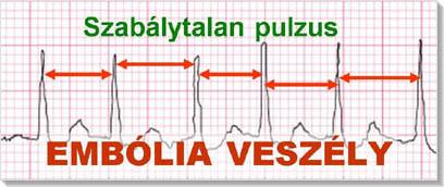 lehetséges-e a magas vérnyomásban szenvedő Cahorsnak