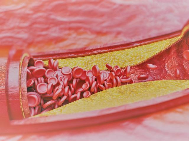 4 fokú magas vérnyomás kezelés a magas vérnyomás kezelésében új