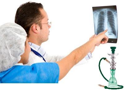 vízipipa és magas vérnyomás magas vérnyomás kezelés com