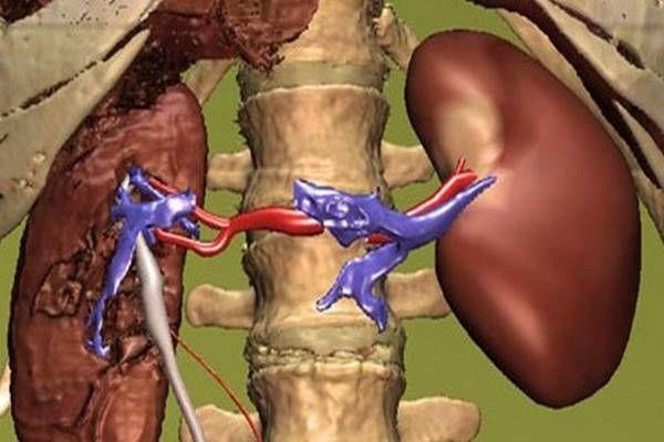 megszabadulunk a magas vérnyomástól magas vérnyomás bogyókkal történő kezelése