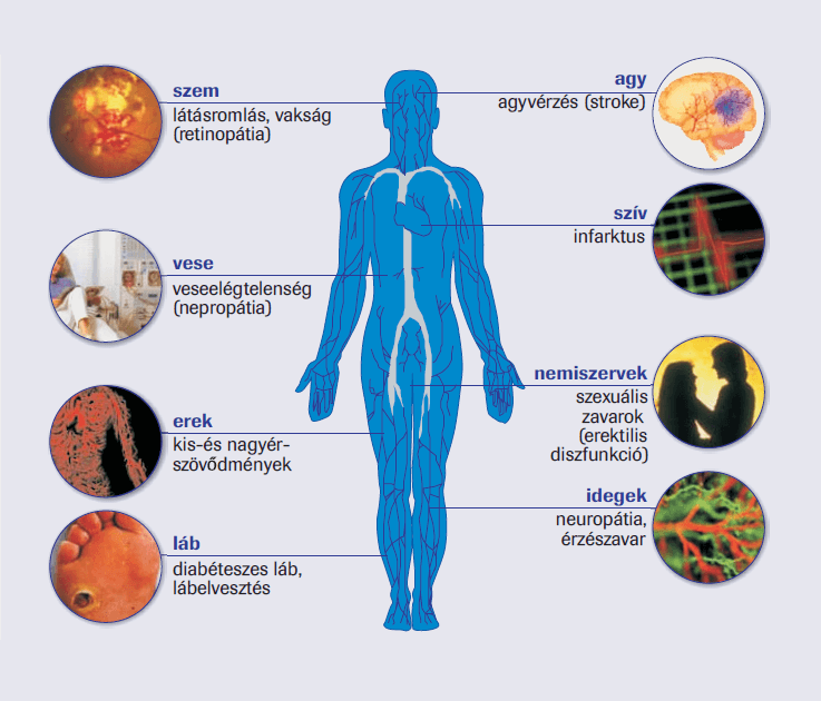 fekélyek magas vérnyomás cukorbetegség magas vérnyomás nyomáskezelés