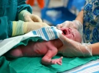 milyen szülés hipertóniával