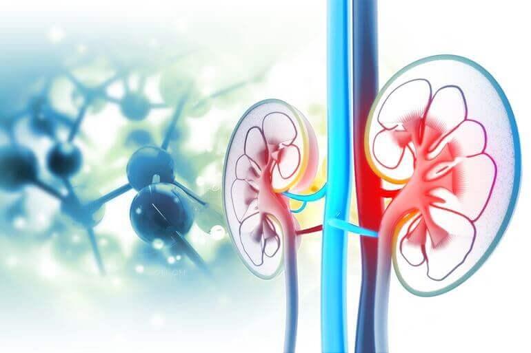 vese cisztákból származó magas vérnyomás magas vérnyomás a nyaki erekből