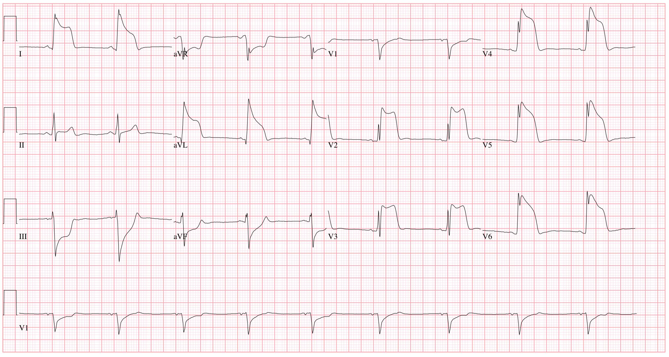 EKG a magas vérnyomás következtetésére testedzés magas vérnyomás esetén