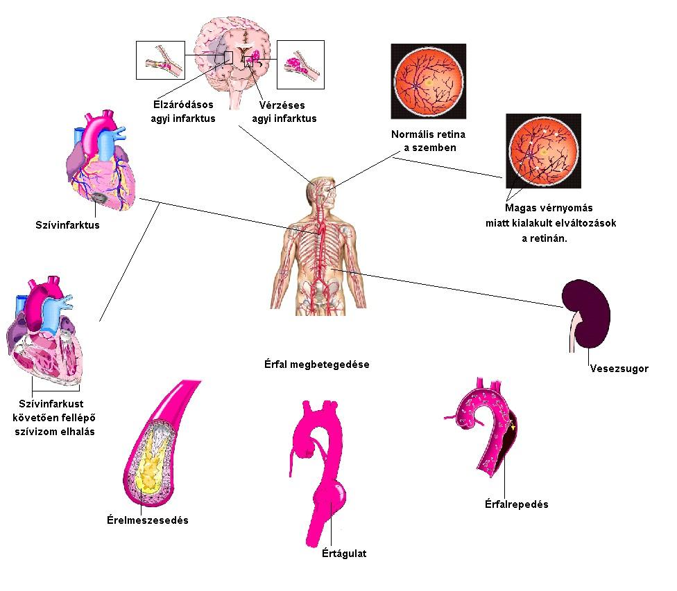 a magas vérnyomás kockázati tényezőinek osztályozása