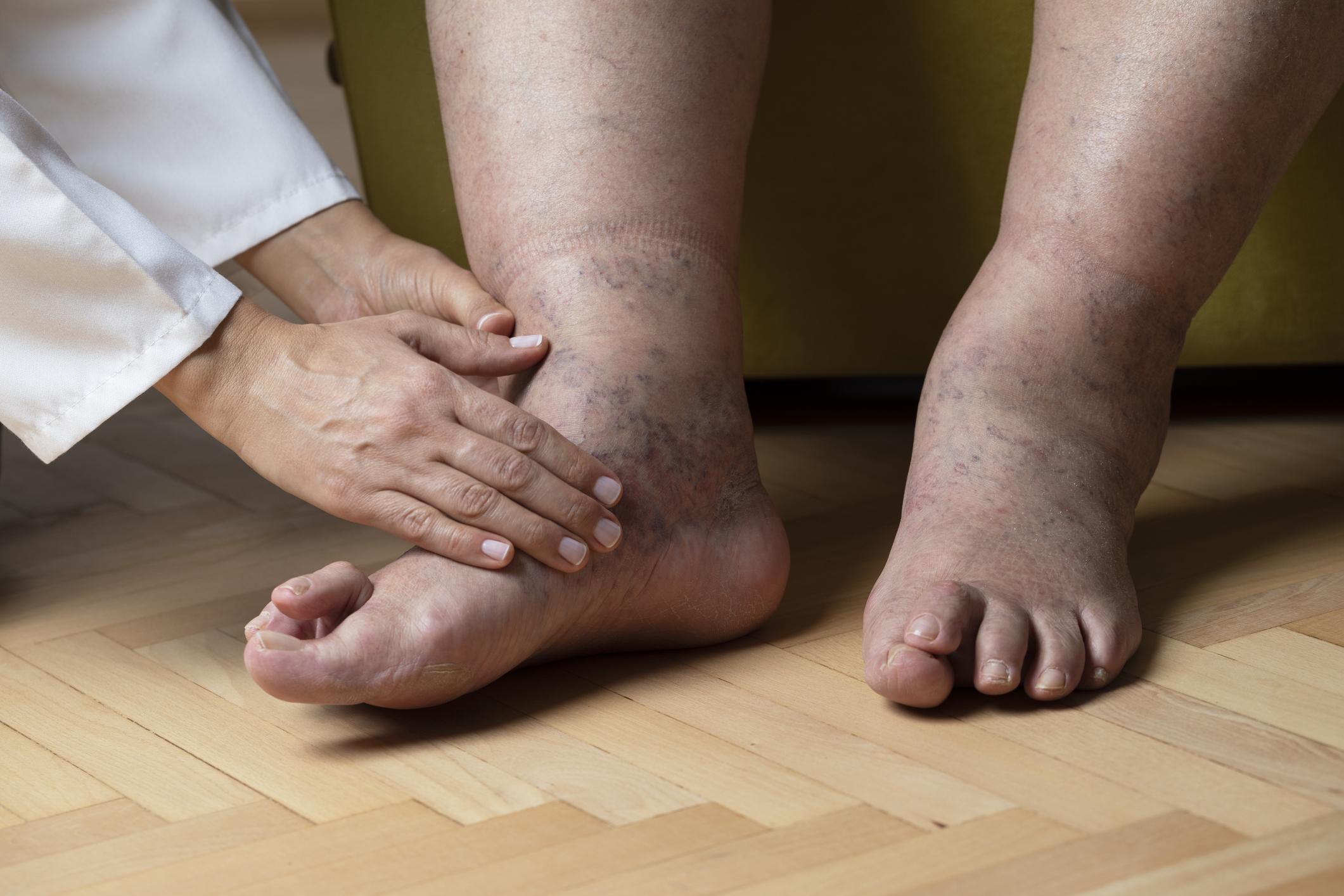 a lábak duzzanata magas vérnyomás