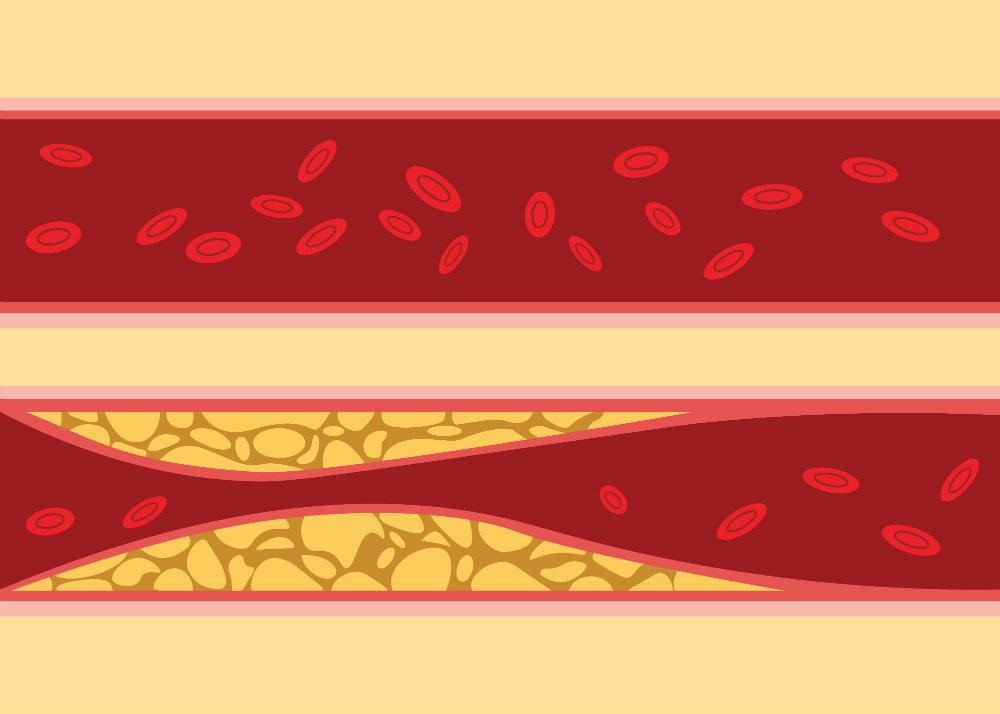a magas vérnyomás köhögést okozhat