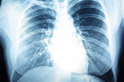 a pulmonalis hipertónia az