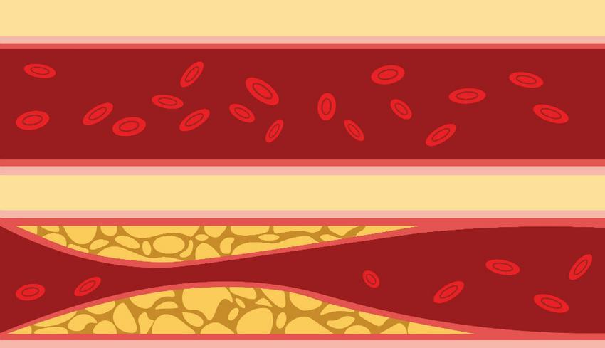 magas vérnyomás és gyors pulzus vastag vér és magas vérnyomás