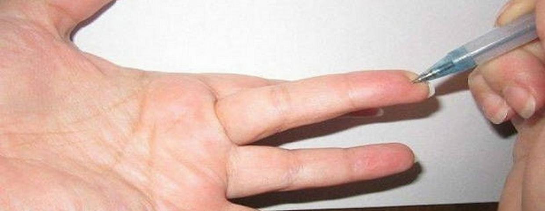 a magas vérnyomás kezelése olvassa el hipertónia vegetatív dystóniával