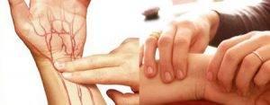 a magas vérnyomást saját kezűleg kezeljük a hipertónia pszichológiai okai