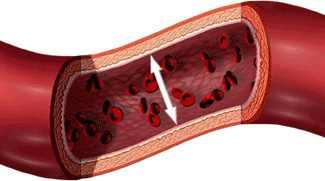 a magas vérnyomás érszűkület vagy alsó hipertónia 120