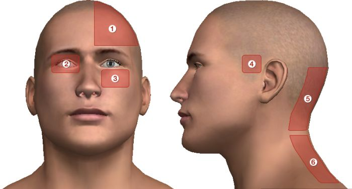 magas vérnyomás, ahol a fej fáj
