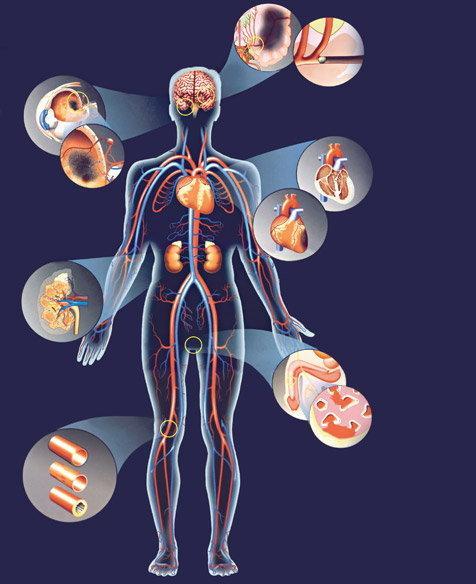 magas vérnyomás kezelés rendhagyó magas vérnyomás és gyors pulzus