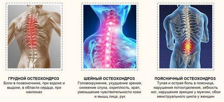 Nyomás ugrások a nyaki osteochondrosisban: okok, elsősegélynyújtás, kezelés