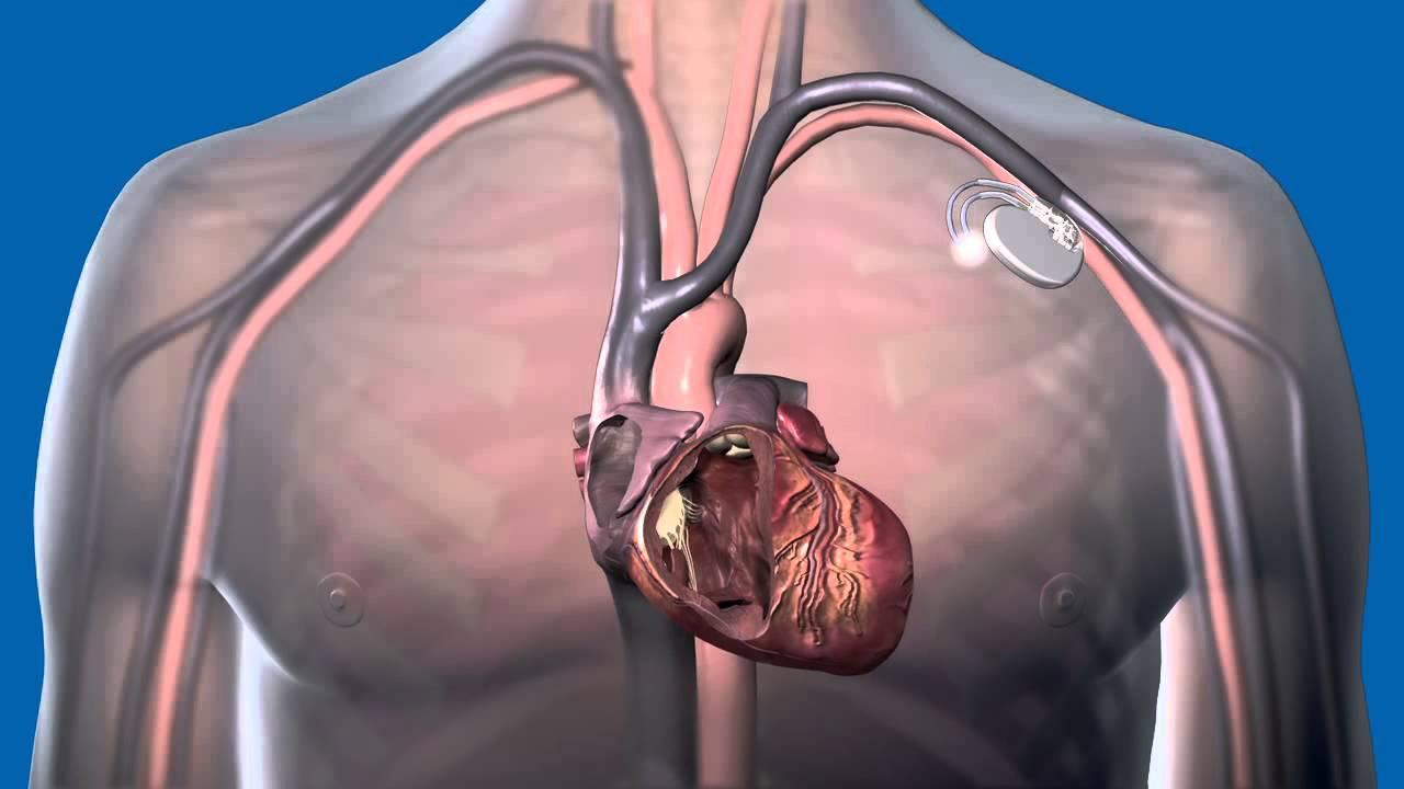 magas vérnyomás és pacemaker magas vérnyomás és a tüdő