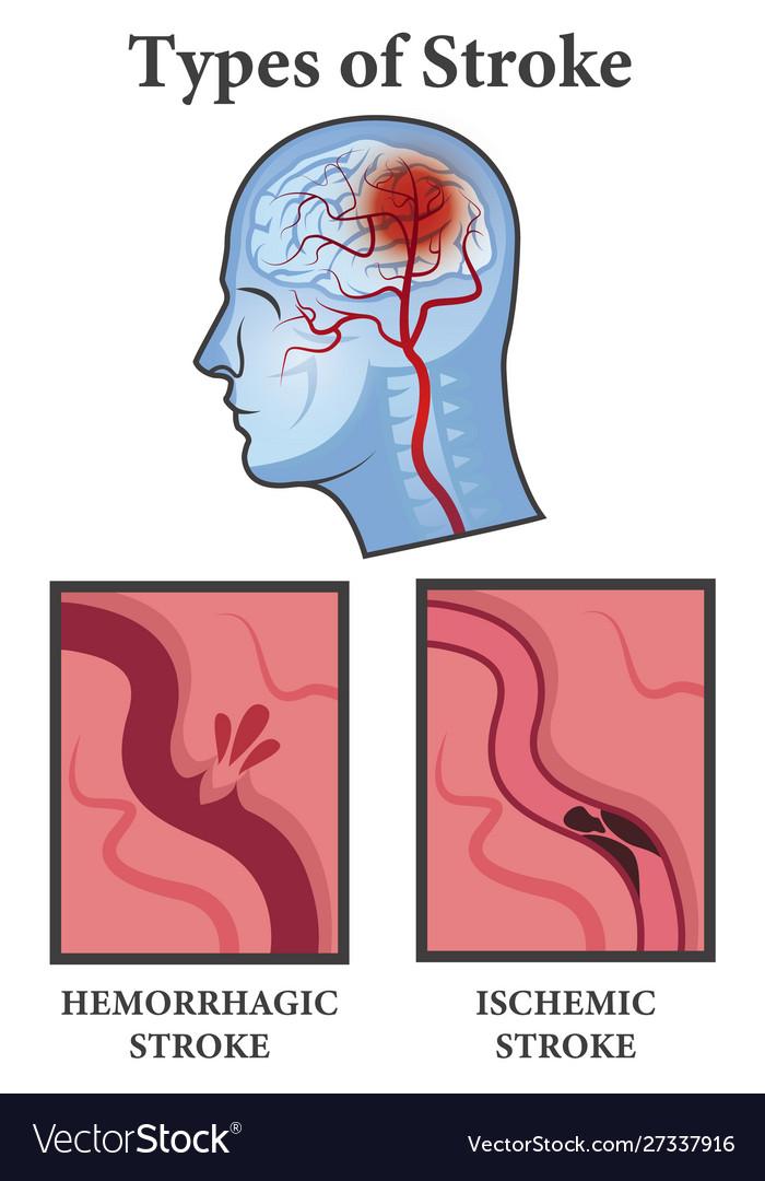 mik a hipertóniás vizsgálatok magas vérnyomás tünetei láz