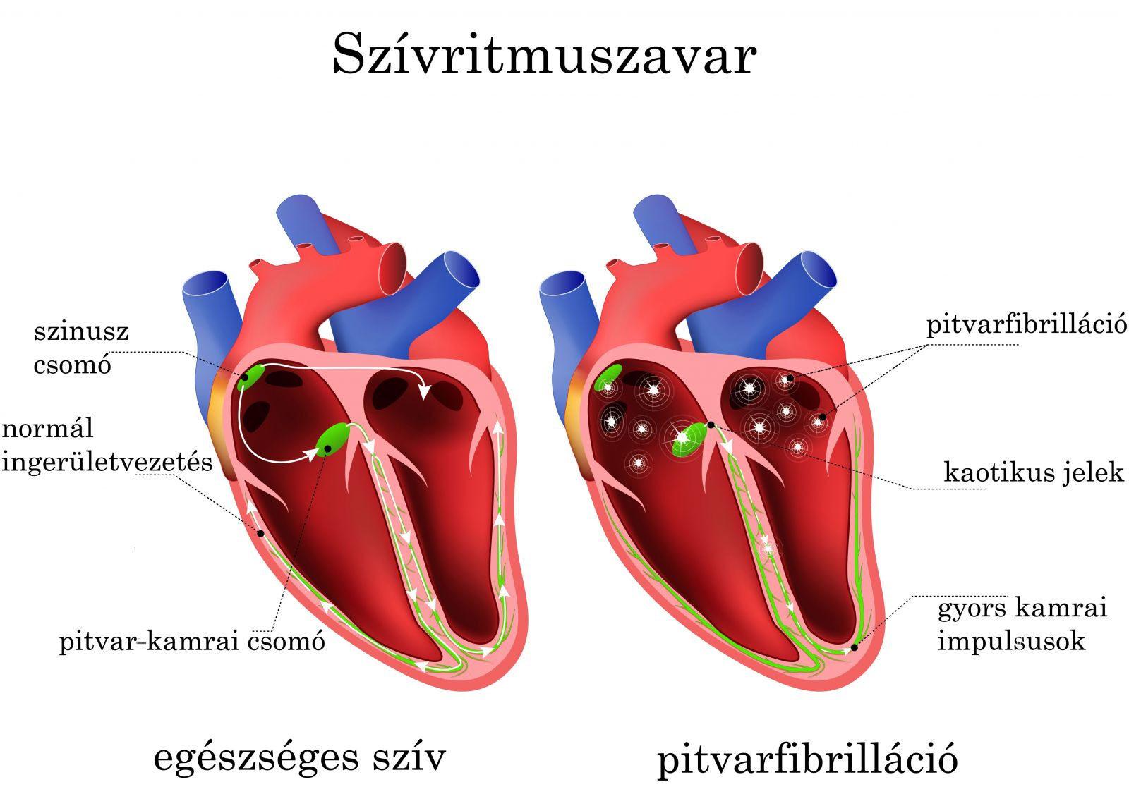magas vérnyomás tünetei tachycardia depresszió a magas vérnyomás kezelésében
