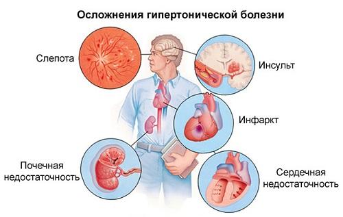 magas vérnyomás a harmadik trimeszterben