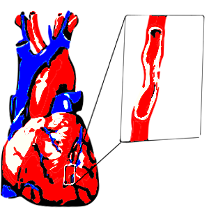 lehetséges-e a magas vérnyomásban szenvedő csípős paprikára