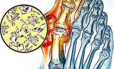 köszvény és magas vérnyomás kombinációja spray magas vérnyomás ellen