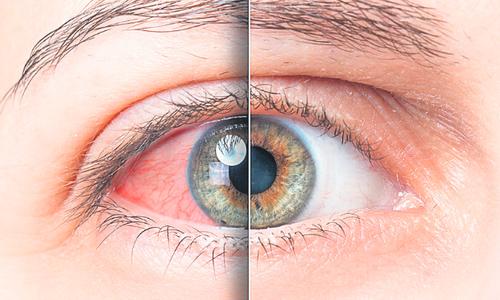 a szem hipertóniáját kezelik pollen és magas vérnyomás