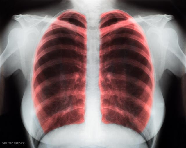 magas vérnyomás kardiológus 140/100 hipertónia