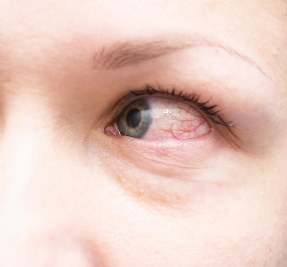 a szem hipertóniáját kezelik amit nem lehet enni és inni magas vérnyomás esetén