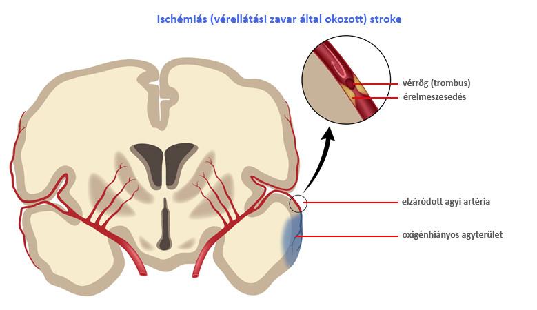 az iszkémiás stroke utáni magas vérnyomás kezelése