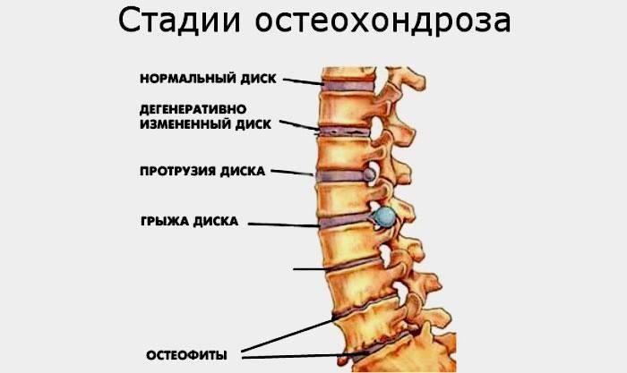 az osteochondrosis hipertóniát okoz