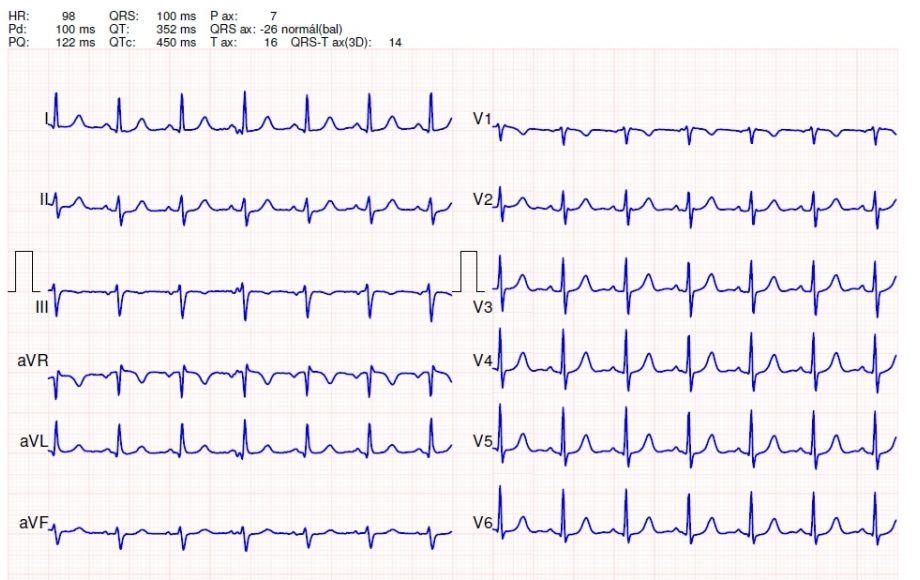 EKG a magas vérnyomás következtetésére biztonságos vizelethajtó a magas vérnyomás ellen