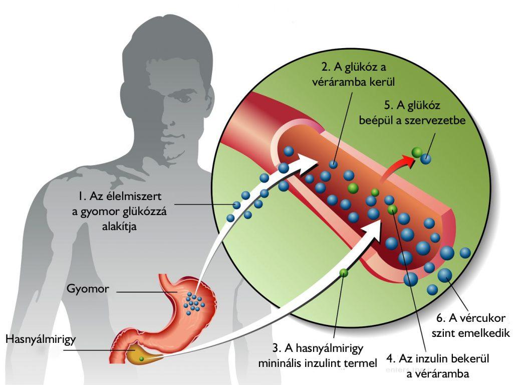 magas vérnyomás inzulinfüggő cukorbetegségben 2 fokozatú magas vérnyomás kockázati 3 szakasz